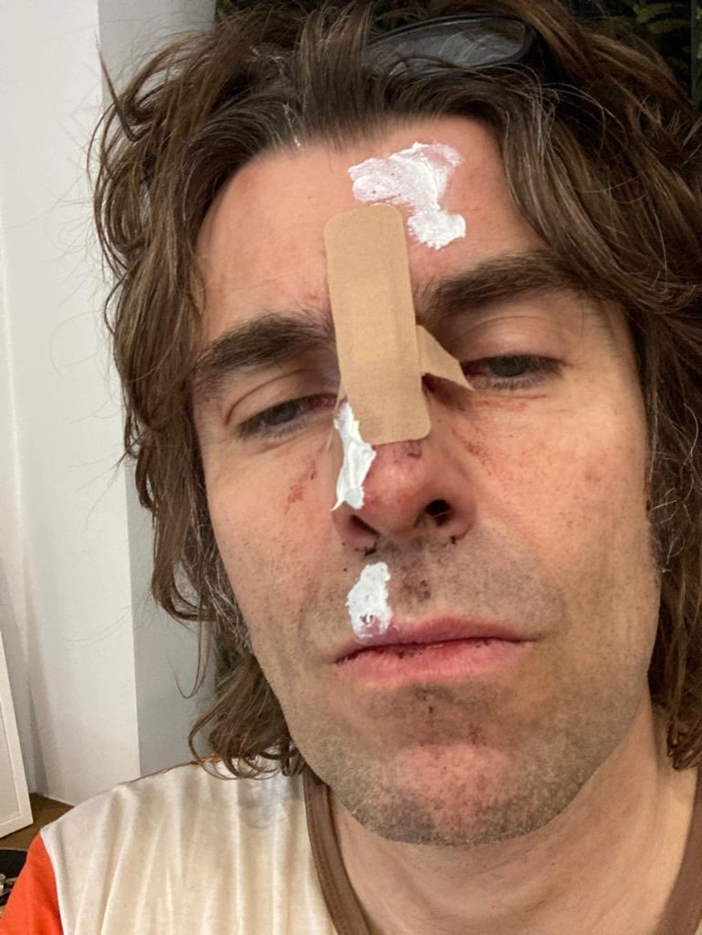 liam-gallagher-injured-'falling-from-a-helicopter'-after-headlining-isle-of-white-festival